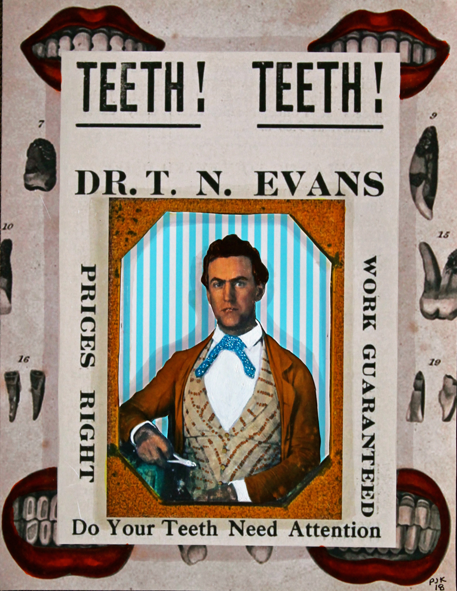 CIVIL WAR DENTIST WITH LIPS AND TEETH (large view)