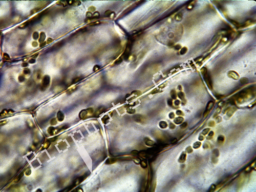 Onion skin cells with chloroplasts