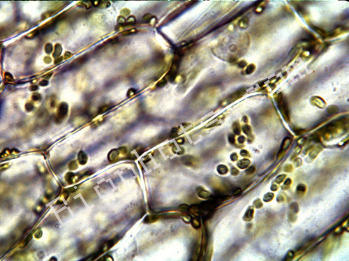 Onion Skin cells
